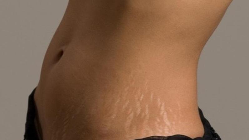 лазерная шлифовка растяжек на животе позволяет их удалить
