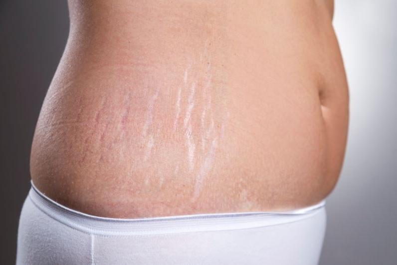 Растяжки после похудения на животе – как убрать дома