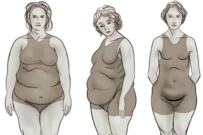 Большой живот у женщин кроме беременности: причины и лечение